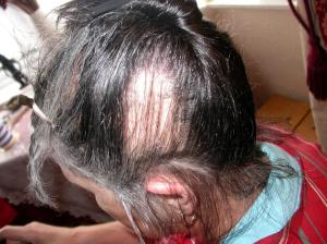 Silent Sufferers of Trichotillomania