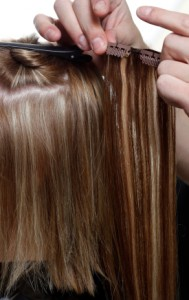 traction_alopecia_caused_by_hair_clipin_3_diane_shawe